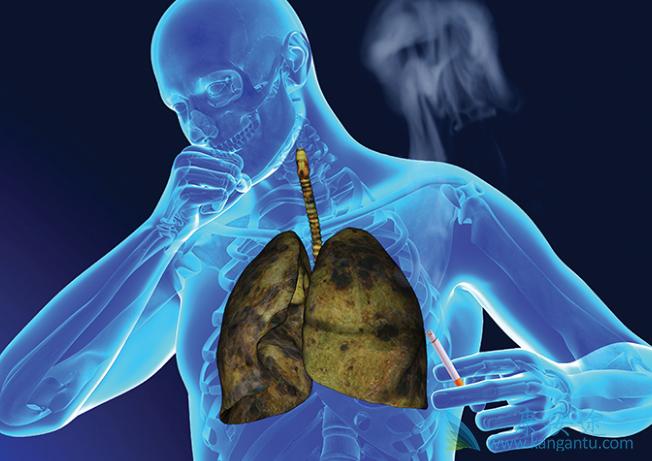 小细胞肺癌脑转移中药治疗病例