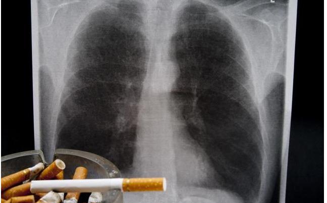 晚期肺癌中医治疗减轻化疗毒副作用
