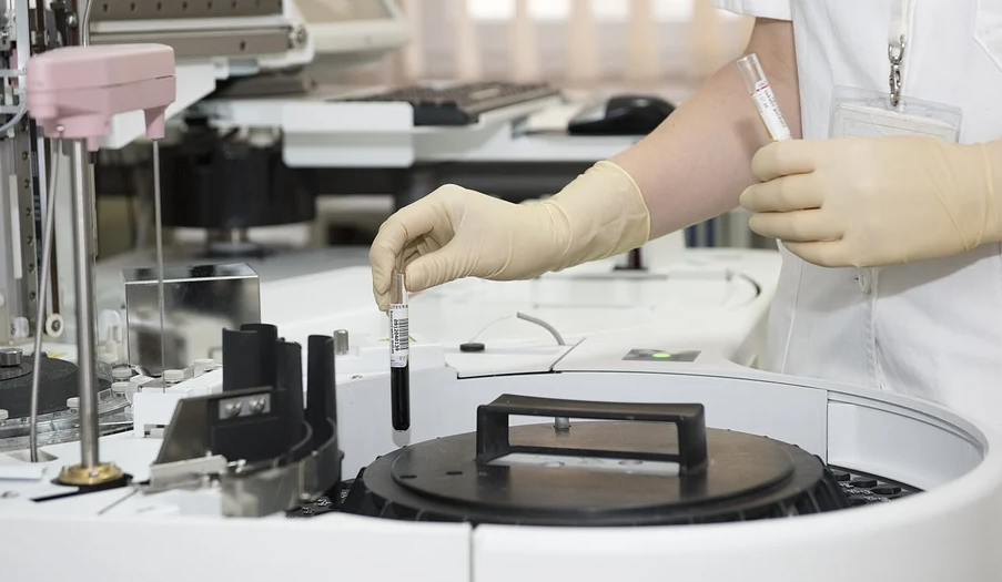 早期肠癌自检方法有哪些